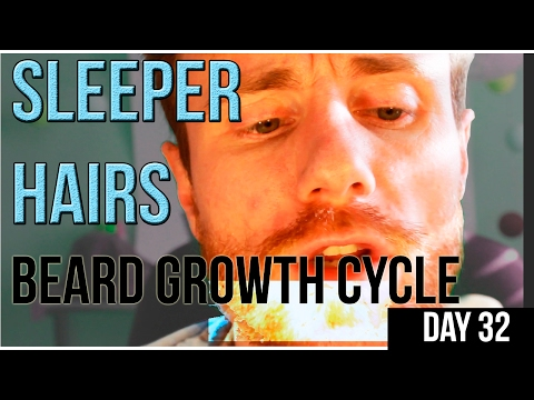 Sleeper Hairs & How they will IMPROVE your Beard GAME! Hair Growth Cycle : Thin, Patchy Advice
