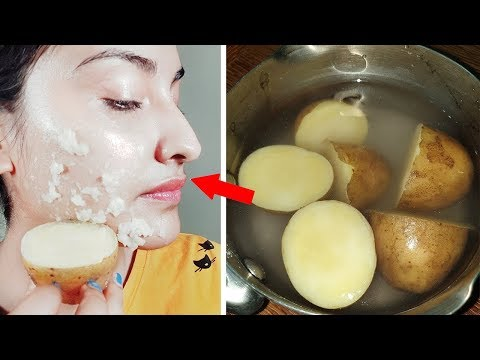 Permanent Skin Whitening with Boil Potato | Get Milky Whiten Skin (100% Result)