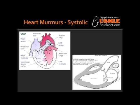 Heart Murmurs - VSD and Mitral Valve Prolapse
