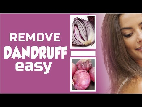 Easy Way to Get Rid of Dandruff with ONION JUICE