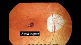 Errors of refraction for undergraduates : Myopia