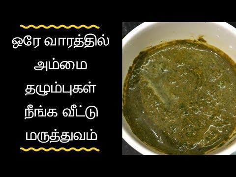 Ammai thalumbu maraiya tips in tamil / Remove Chicken Pox Marks in Tamil / அம்மை தழும்பு நீங்க