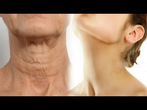 Simple Ways On How To Make Your Neck Look Younger