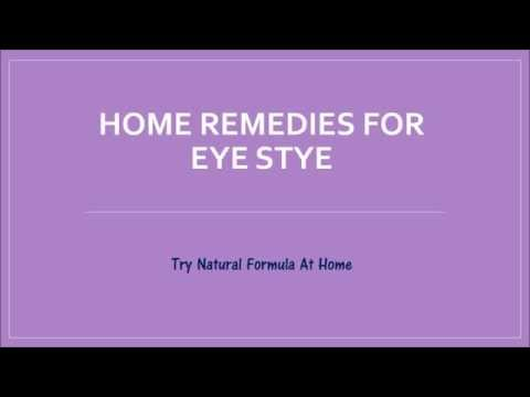 How To Get Rid of a Stye Fast Naturally | How to Treat Eye Stye?