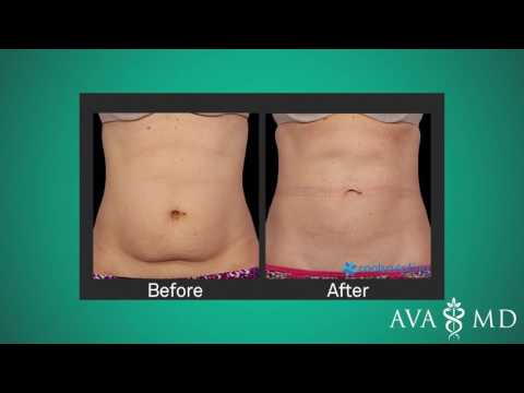 Fat Reduction with CoolSculpting