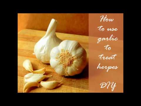 How to use Garlic to treat herpes - Home remedy