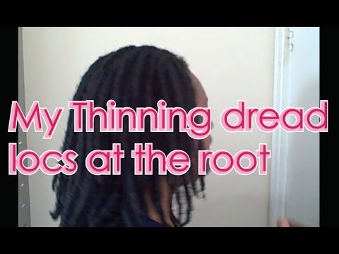 My Thinning Dread Locs at the RootS o video