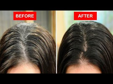 Turn White or Gray Hair to Black Naturally Using Only 2 Ingredients!