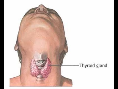 Home Remedy for Hypothyroidism  - in Tamil