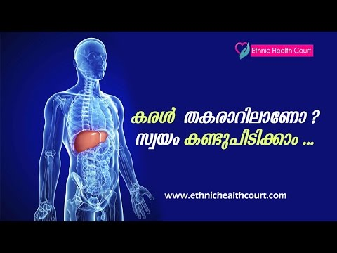 Alcoholics ? Tips to Find Out Liver Damage | Liver Disease Symptoms Malayalam | Ethnic Health Court