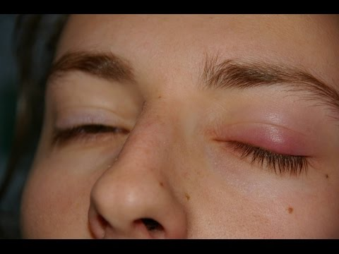 How Get Rid of a Stye Overnight