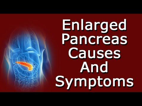 Enlarged Pancreas Causes And Symptoms
