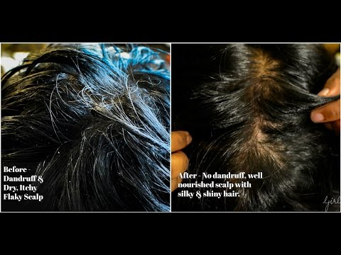 Magical Hair Mask for dry, itchy and dandruff prone hair - Get BEST results in one wash.