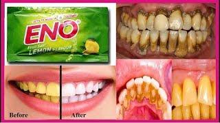 Eno का ये छोटा सा उपाय आपके गंदे पिले दांतो को एक मिनट में चमका देगा //teeth whitening.