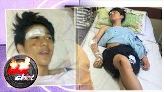 Terkuaknya Keberadaan Iqbal CJR Pasca Kecelakaan - Hot Shot 27 Juni 2015