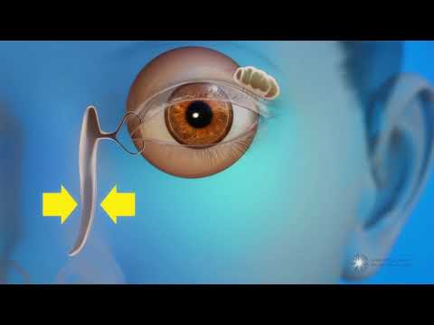 What is a blocked tear duct?