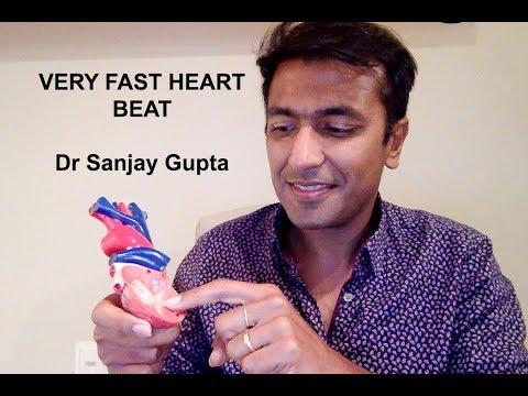 Very fast heartbeat