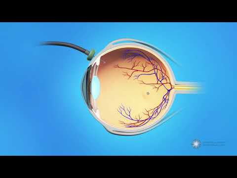 Vitrectomy Surgery for Macular Holes