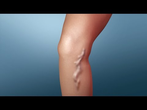 Treatment for Varicose Veins Procedures | Nucleus Health