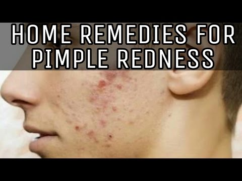 HOME REMEDIES FOR PIMPLE REDNESS