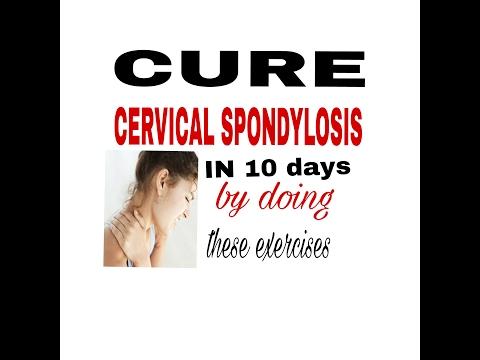 Cure CERVICAL SPONDYLOSIS in just 10 days..