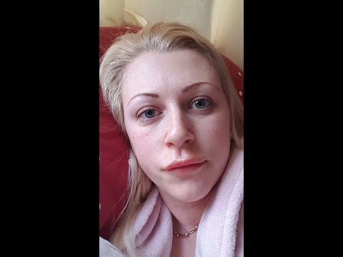 Lip fillers gone wrong!!