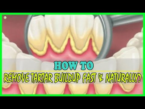 How To Remove Tartar Buildup At Home Naturally? | Best Home Remedies