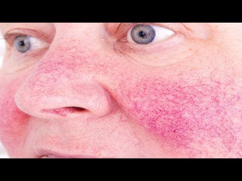 How to Get Rid of Rosacea Naturally.