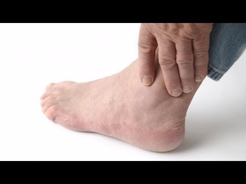 How to Recognize Gout Symptoms | Foot Care