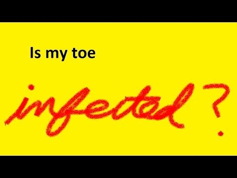 Is My Toe Infected? by Austin Podiatrist