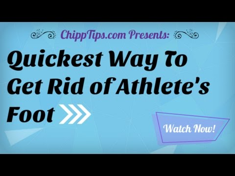 How to Get Rid of Athlete's Foot Really Fast | Best Way to Kill Athlete's Foot Naturally