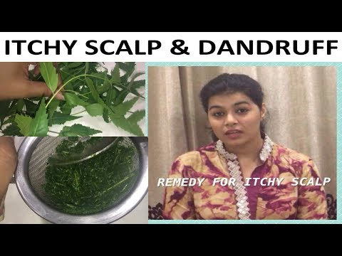 Dandruff and Acne on Head (Hindi) !! Dandruff and Acne Treatment at Home in hindi