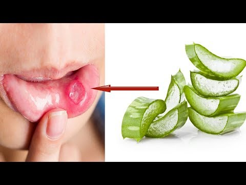 ✅How To Cure Mouth Ulcer Or Canker Sores Fast At Home By Aloe Vera | Health 365😍