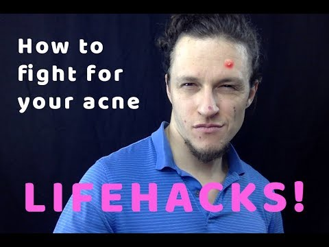 How to fight and win your sexy ACNE and PIMPLES back | LIFEHACKS | TIPS