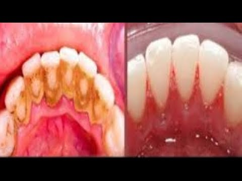 THIS IS NO JOKES IN 5 MINUTES REMOVE DENTAL PLAQUE WITH GOING TO THE DENTISTS