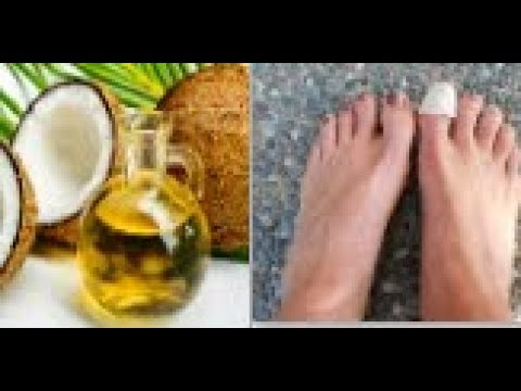Coconut oil+Tea Tree oil.. the best natural remedies against the spread of nail fungus