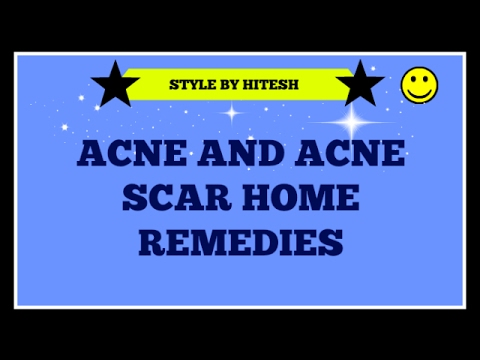 Acne and Acne scar home remedies