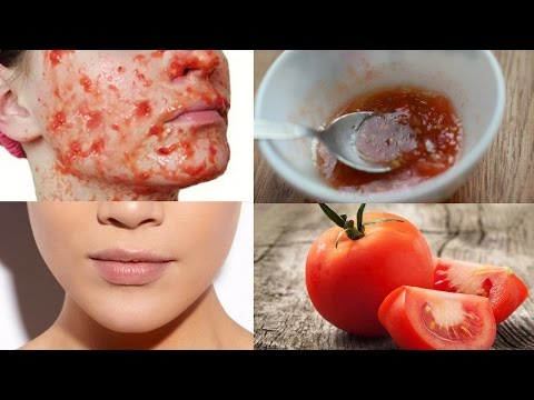 Tomato Face Mask for Fair, Glowing, Soft & Spotless Skin | Home Remedy To Get Glowing Skin Instantly