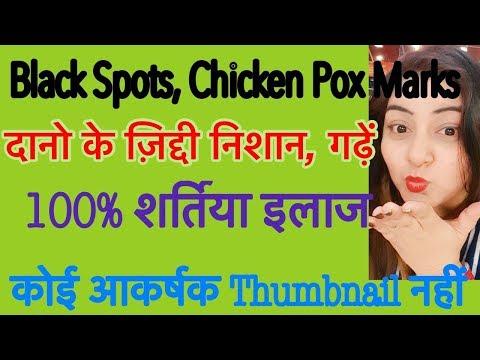 DIY Bio Oil/No Marks cream - दाग़ धब्बे मिटाएँ - Remove Acne Scars Naturally 100% | JSuper Kaur