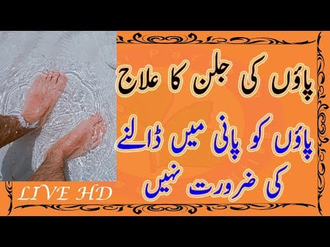 Foot Burning Treatment - What A Remedy For Burning Foot - Any Body Use Not Side effect
