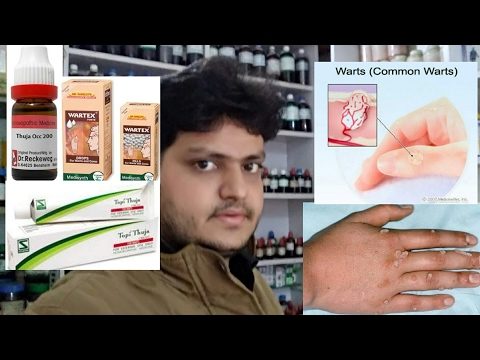 homeopathic medicine for warts removal on face neck finger feet explain???