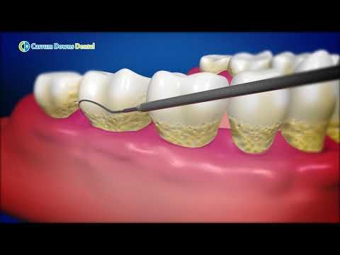 Periodontitis Disease & Treatment  | Gum Disease & Treatment | Carrum Downs Dental Group