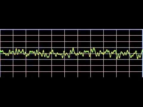 Bruxism (Teeth Grinding) - Rife Frequencies