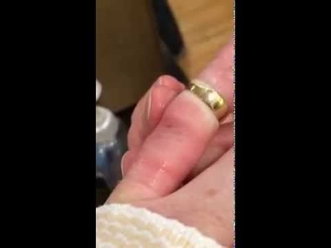Getting a ring off a swollen finger