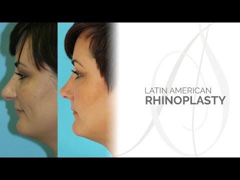 Ethnic Rhinoplasty: Latin American Rhinoplasty