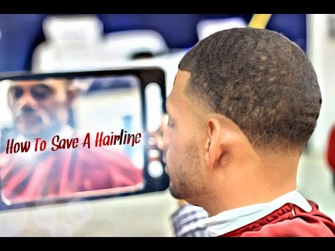 How To Save A Hairline HD