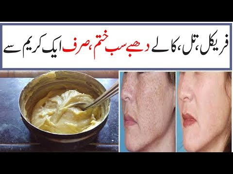 REMOVE FRECKLES AND BLACK SPOTS AND ACNE SPOTS AND GIVE SKIN WHITENING AND GLOWING DAY BY DAY