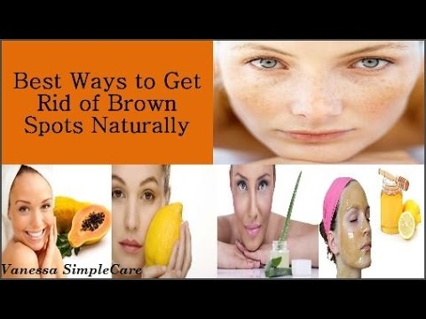 How To Get Rid Of Brown Spots On Your Face Fast And Naturally