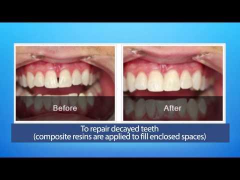 Cosmetic Dental Bonding 101
