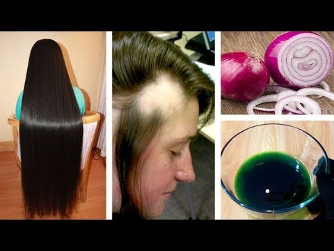 Get Long Thicken HAIR Onion & Ginger Oil - Magical Home Remedy to Hair Regrowth Urdu Hindi